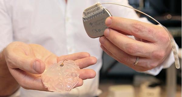 implant domózgowy